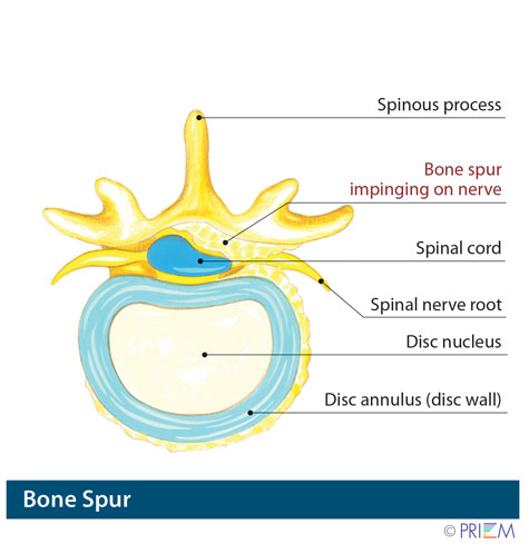 spine surgeon san jose