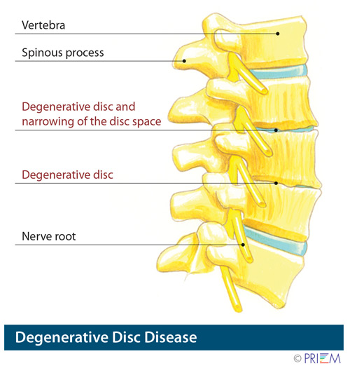 herniated disc Sunnyvale California